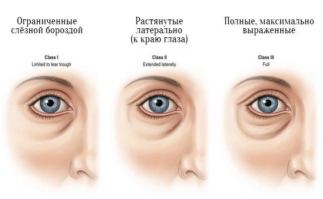 Эффективные косметические процедуры от синяков под глазами